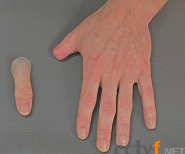 德国硅胶制精致假肢超真实 一截小的拇指大约花一两天